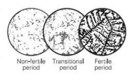 ovulation fern test
